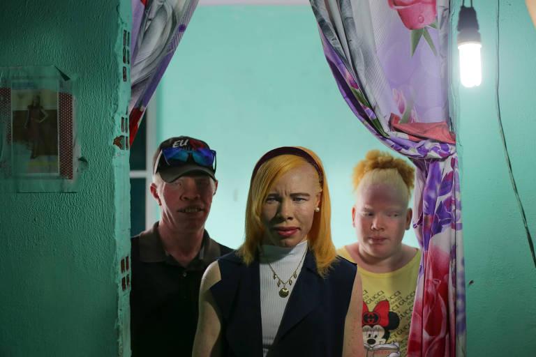 Albinos da ilha da Maré