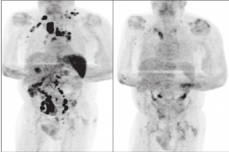 Imagem dividida ao meio; de um lado, é possível ver manchas escuras no paciente; do outro, a maior parte das manchas desapareceu