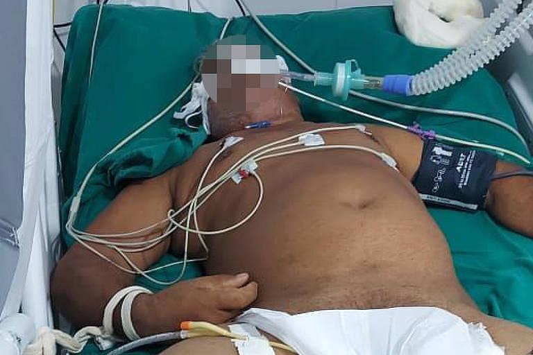 Paciente com Covid-19 intubado e com as mãos atadas às cama em hospital de campanha em Porto Velho, devido à falta de sedativos
