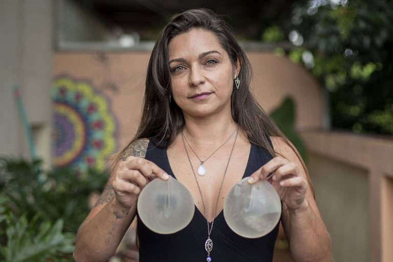 A acupunturista e massoterapeuta Liliane Barcellos, que fez o explante de silicone em 2019, após sofrer com sintomas e peregrinar por diversos médicos