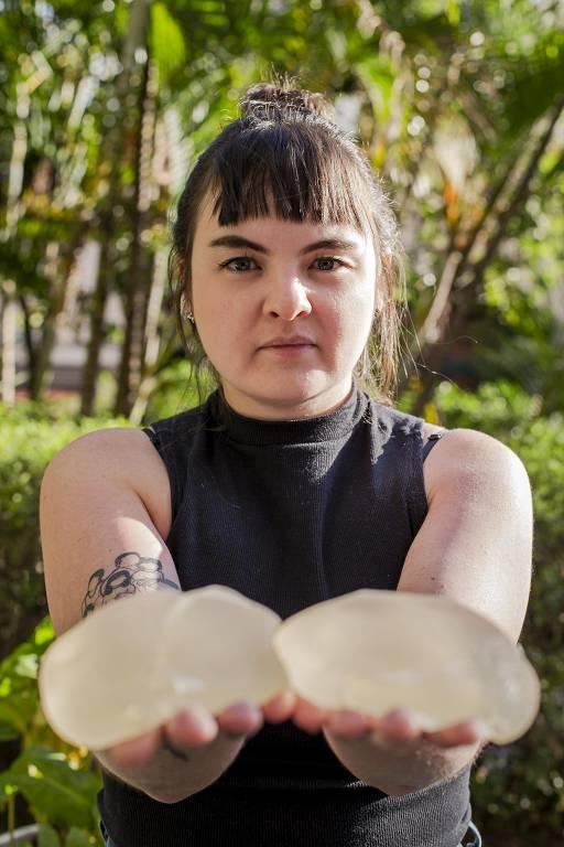 A empresária Bianca Malandrino fez o explante em 2018, após 10 anos usando prótese as próteses, que só se romperam meses depois que ela retirou