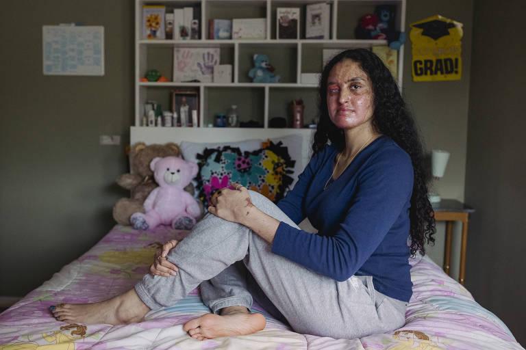 Nafiah Ikram, 21, que foi atacada com ácido, em sua casa em Elmont, no Estado de Nova York
