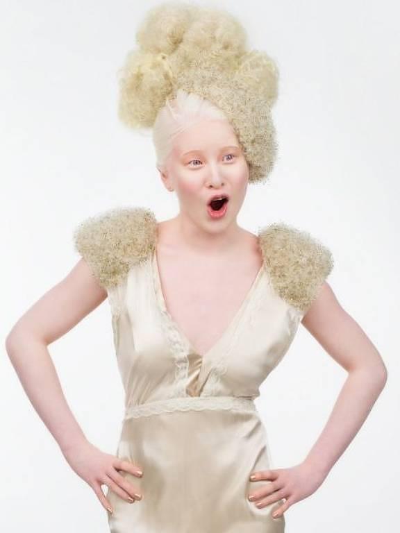 A chinesa albina abandonada bebê que se tornou modelo da Vogue