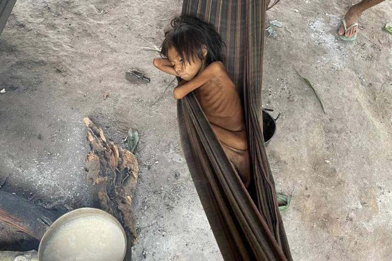 Criança magra ao ponto de ter ossos visíveis sob a pele, em rede