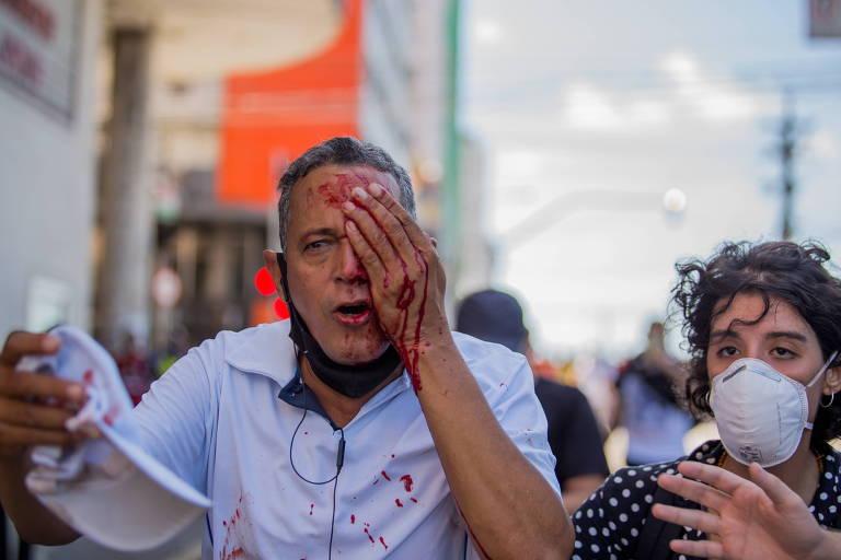 PM é afastado após cegar homem com bala de borracha em ato contra Bolsonaro no Recife