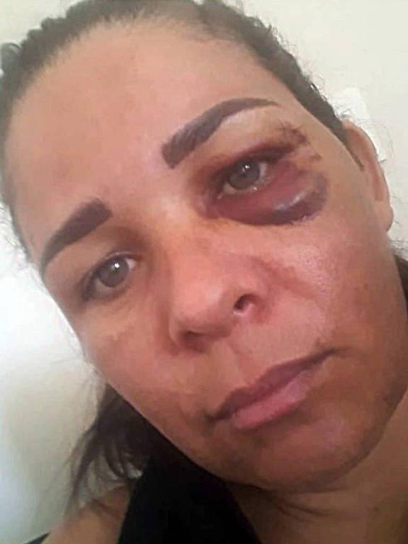 close no rosto de mulher com hematoma no olho
