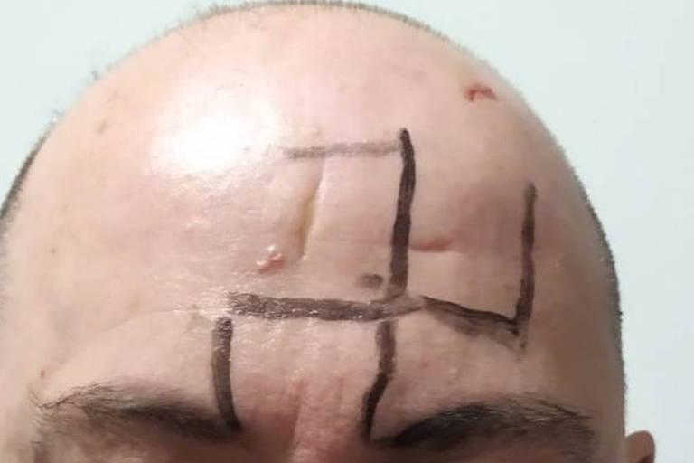 Homem é agredido e tem suástica desenhada na testa em ataque em MG