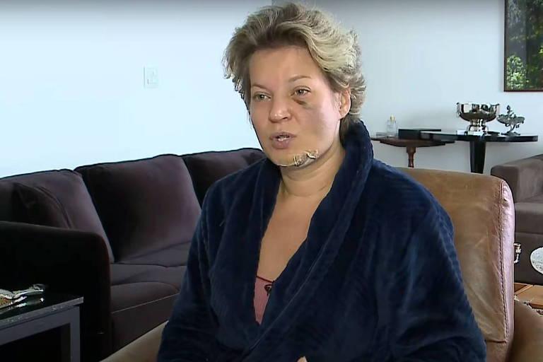 Em entrevista ao SBT News, Joice Hasselmann mostra ferimentos no rosto