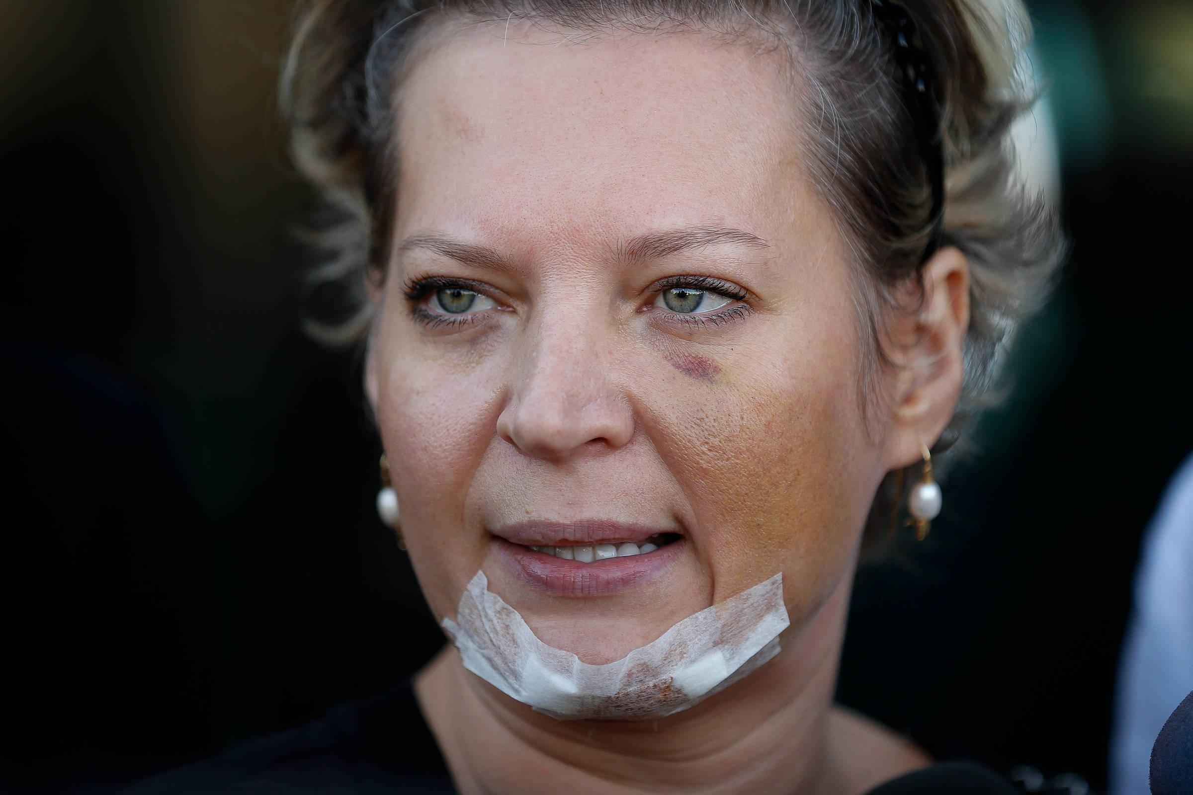 Em depoimento sobre ferimentos, Joice critica Heleno e diz não confiar na PF