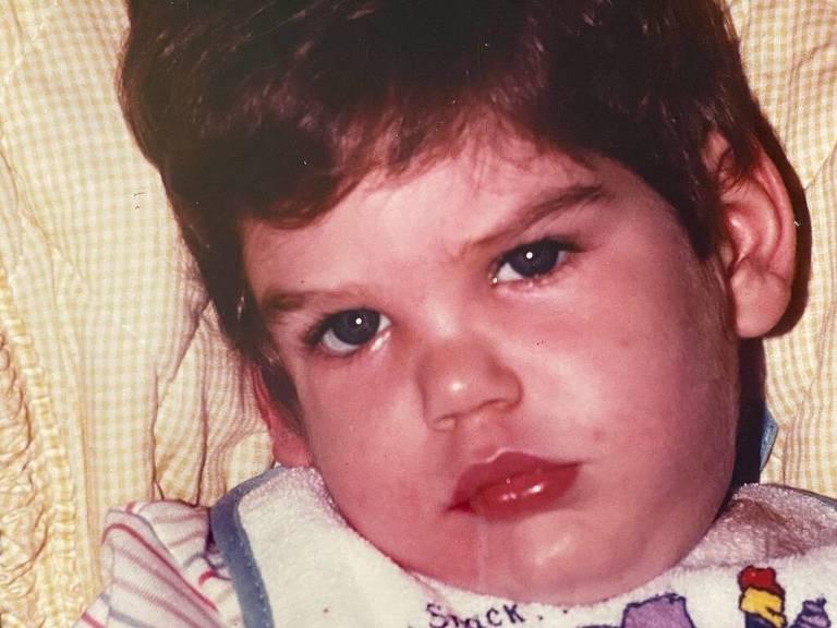 Benjamin Dowling, bebê que foi sacudido em 1984 e teve danos cerebrais por toda a vida, até morrer em 2019