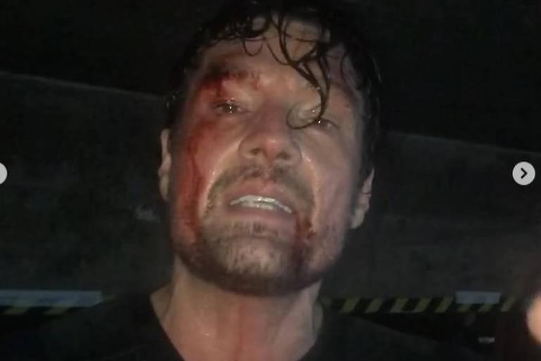 O ator Ricardo Macchi mostra maquiagem como se estivesse machucado