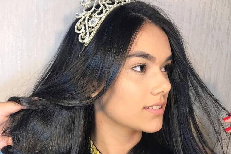 Miss Roraima Teen morre aos 21 anos durante cirurgia de emergência