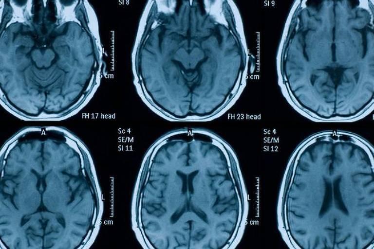 Imagem de raio x mostra seis cérebros