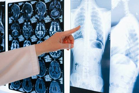 Testes moleculares e terapia-alvo trazem novas perspectivas para identificar o tipo da doença