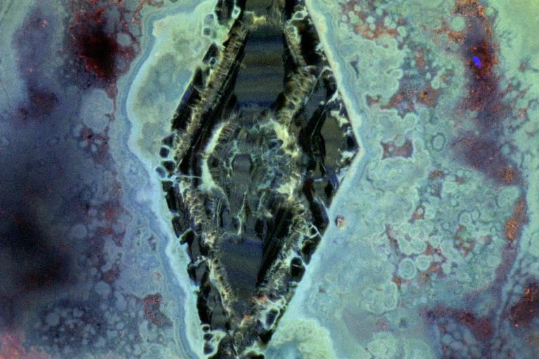 Cálculos renais observados ao microscópio