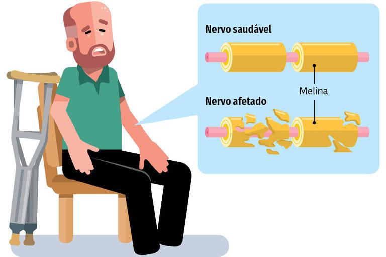 Síndrome rara causada pela Covid-19 ataca o sistema nervoso