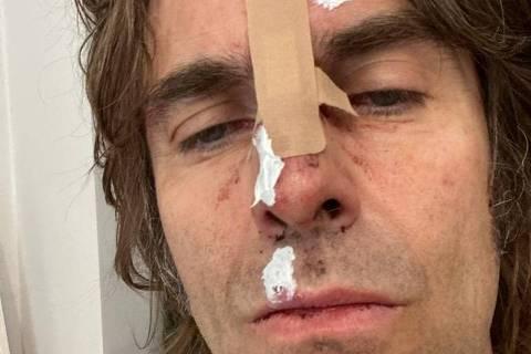 O músico britânico Liam Gallagher mostra machucados no rosto após acidente com helicóptero