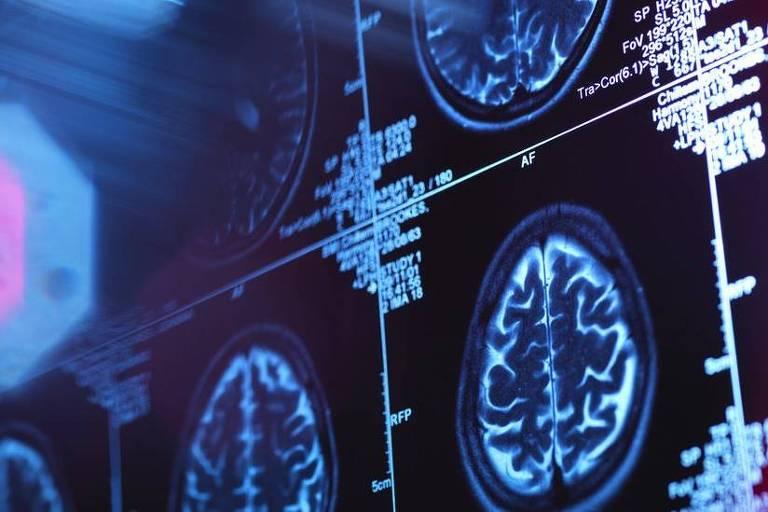 imagem de raio x mostra cérebro