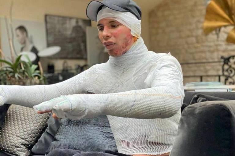 Estilista Olivier Rousteing revela que sofreu graves queimaduras em acidente
